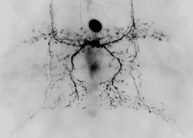 Insect vibratory interneuron (photo: M. Zorović)