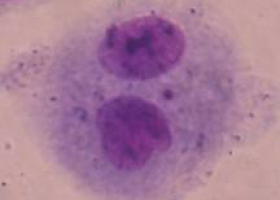 Binucleated cell with a micronucleus. (photo: Dr. Bojana Žegura