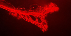 entral projections of vibrationally sensitive neurons of Troglophilus neglectus. Stained with neurobiotine marked with streptavidine-labeled antibodies (photo: Nataša Stritih)