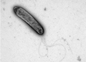 Rastlinska bakterija z bički, TEM Philips CM100, Bioscan 792, Magda Tušek Žnidarič.