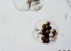 Morska iskrnica / Noctiluca scintillans (foto: V. Turk)