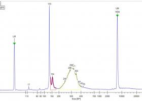 Kapilarna elektroforeza vzorca knjižnice malih RNA za sekvenciranje. (Foto: Denis Kutnjak)