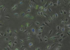 Celice A549 označene z aptamerami (zelena fluorescenca). (foto: Mateja Delač)