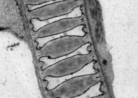 Xylem cell in tomato stem, TEM Philips CM 100, Orius SC 200, Magda Tušek Žnidarič.