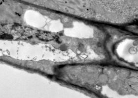 Celice s peroksisomom (povečan na prejšnji sliki) v listu krompirja, TEM Philips CM100, Bioscan 792, Magda Tušek Žnidarič.