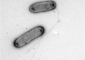 Rastlinski bakteriji z bički, TEM Philips CM100, Bioscan 792, Magda Tušek Žnidarič.