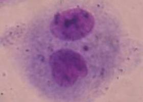 Dvojedrna celica z mikrojedrom. (foto: Dr. Bojana Žegura